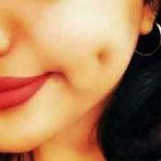 Cheek Dimples