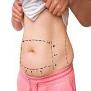 Cosmetic Abdominal Surgery 3