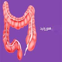 Hemorrhoids or Piles1