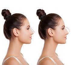 Best Rhinoplasty in Iran5