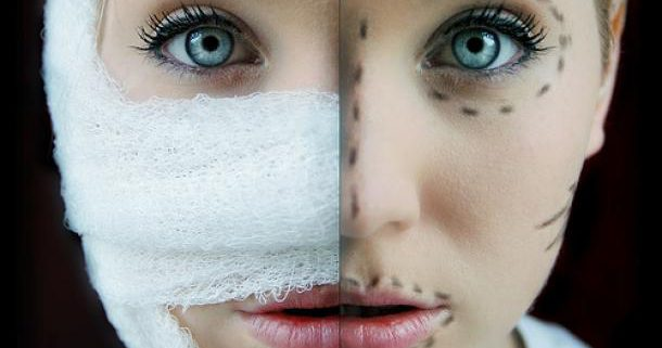 plastic surgery in Iran 22