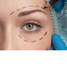 Eyelid Surgery0
