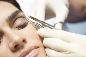 Eyelid Surgery33