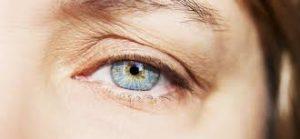 Eyelid Surgery6
