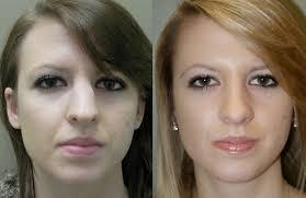 انجام جراحی بینی گوشتی