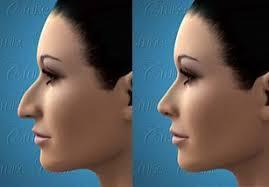 زمان جراحی بینی