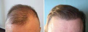 مراقبت از کاشت مو
