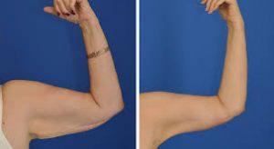 مزیت لیپوماتیک بازو