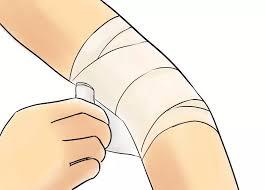 مراقبت بعد از لیفت بازو