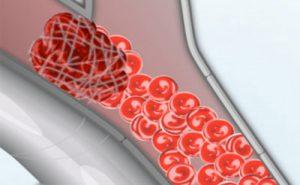 Lipomotor risks